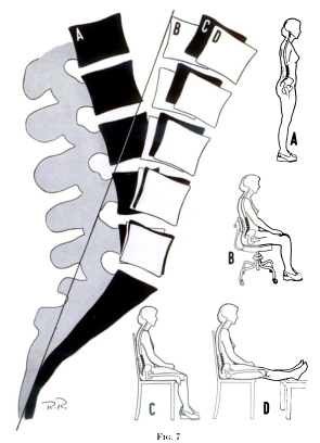 X-ray tracing of the lumbar spine showing flexion in different positions